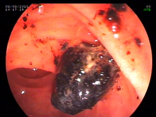 Pain in Abomen with Normal Liver